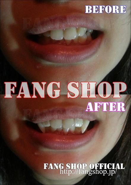 FANG SHOP 付け牙 A-0251(左右側切歯審美Type)