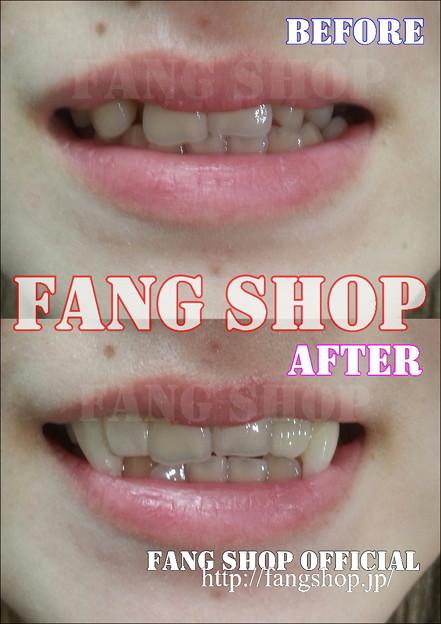 FANG SHOP 付け牙 A-0257-?(左右側切歯審美Type)