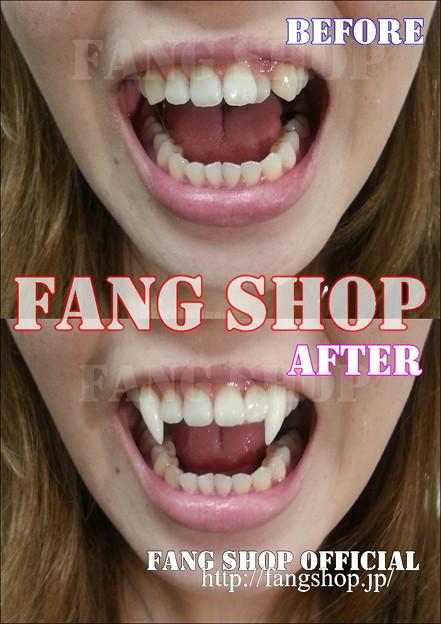 FANG SHOP 付け牙 A-0258(左側切歯審美Type)