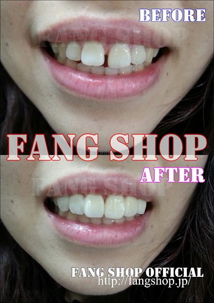 FANG SHOP  T-0020(上顎6前歯審美付け歯Type)